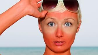 Sunburn Face Captions